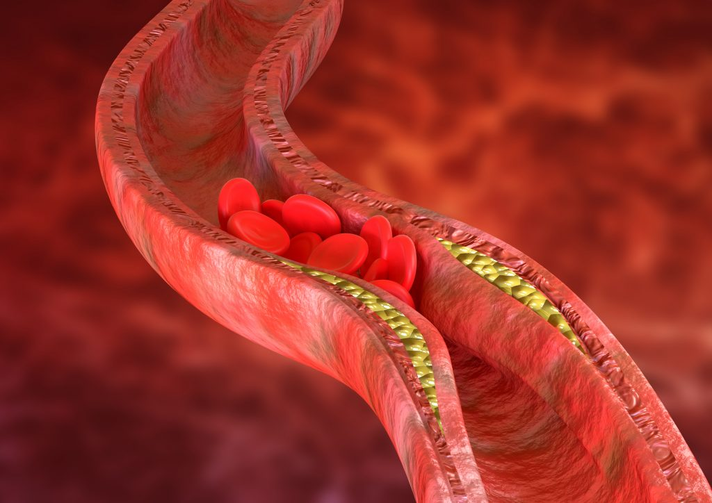 arteries getting clogged by fatty blood vessels high cholesterol
